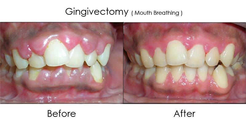 Lợi trước khi và sau khi điều trị viêm quanh răng