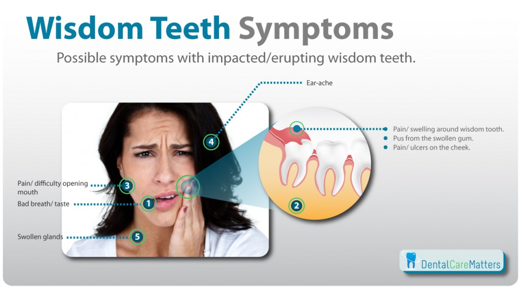 Biến chứng khi răng khôn mọc ngầm, mọc lệch