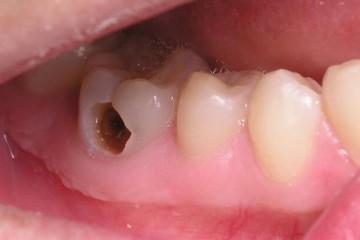 Sâu răng – khi nào cần đến khám nha sỹ?