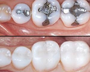 Trám bít hố rãnh – biện pháp phòng ngừa sâu răng hiệu quả