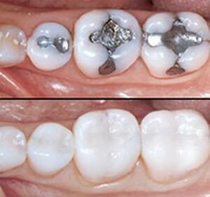 Trám bít hố rãnh - biện pháp phòng ngừa sâu răng hiệu quả(1)