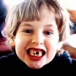 Bệnh viêm lợi thường gặp ở trẻ nhỏ