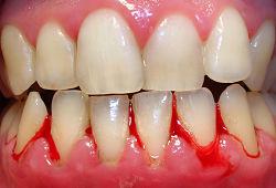 Đánh răng không đúng gây chảy máu chân răng