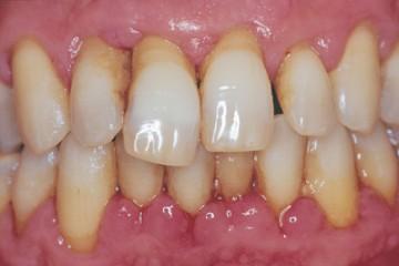 Điều trị bệnh viêm quanh răng