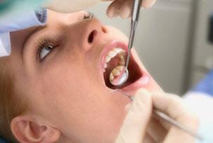 Nhổ răng khi nào?