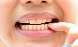 Răng sứ có bị ngả màu vàng hay đen sậm không?