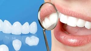 5 lý do nên sử dụng răng sứ cao cấp