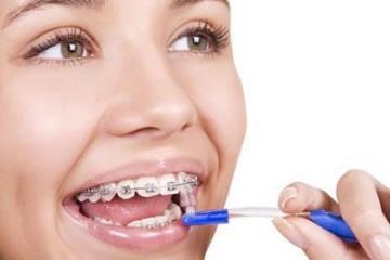 5 Cách chọn bàn chải đánh răng cho răng sứ phù hợp với mọi người