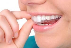 3 nhược điểm của răng giả