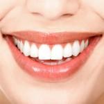 Răng sứ có bị mảng bám và cao răng không?
