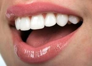 Răng sứ có bị ngả màu không?
