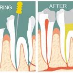 Những điều cần biết về điều trị tủy răng