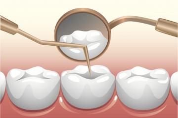 Điều trị tủy răng là gì?