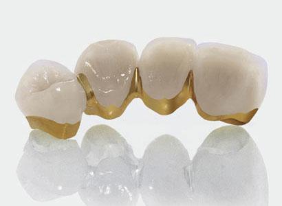 khái niệm răng sứ là gì