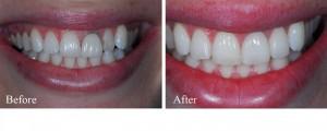 Phục hình trước là răng sứ kim loại, sau là răng sứ không kim loại