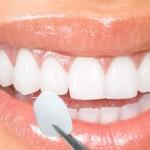 Giải đáp thắc mắc: Răng sứ có bền không?
