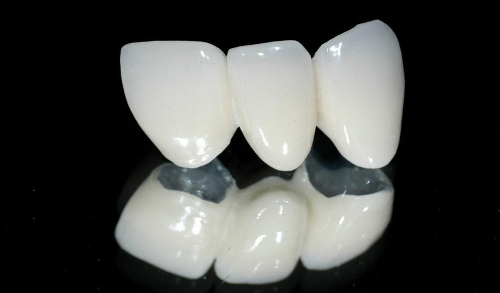 răng sứ là gì?