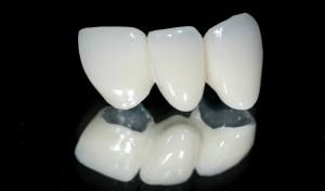 Độ bền của răng sứ cao cấp