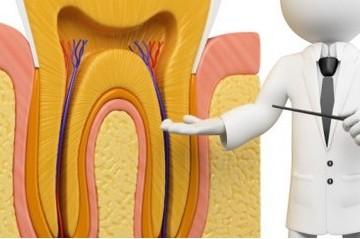 Tư vấn – các vấn đề thường gặp sau điều trị tủy răng