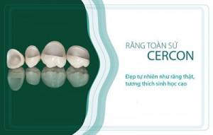 răng sứ cercon là gì?
