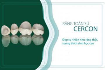Khám phá 5 ưu điểm vượt trội của răng sứ cercon