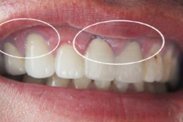 Nhược điểm của răng sứ cercon mà bạn cần biết