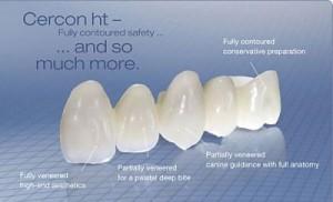 Khái niệm răng sứ cercon là gì?
