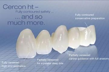 """Tìm hiểu khái niệm: """" Răng sứ Cercon là gì?"""""""