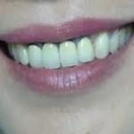 """Sự thật """"Làm răng sứ Titan có bị đen viền răng không?"""""""