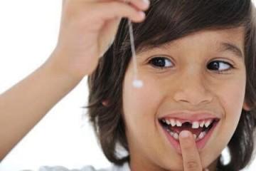 Nhổ răng sữa cho trẻ và những điều cần lưu ý