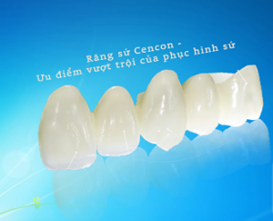Tại sao nên sử dụng răng sứ cercon?