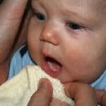 Tưa lưỡi ở trẻ sơ sinh và trẻ nhỏ có thể gây lở loét miệng rất nhanh