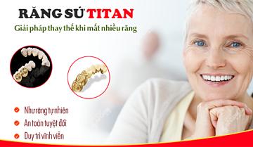 Kiến thức nha khoa: Răng sứ Titan là gì?