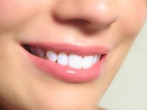 làm răng sứ kim loại có an toàn không