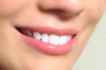 Làm răng sứ cercon có bị đen viền răng không?
