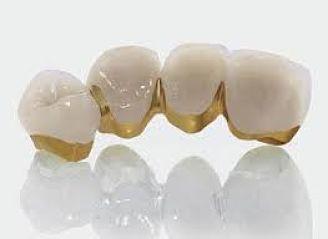 Làm răng sứ kim loại thường có tốt không?