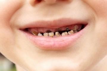Tìm hiểu nguyên nhân và cách xử trí khi trẻ mọc răng sữa bị đen