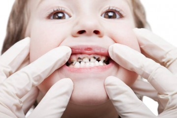 Nguyên nhân và cách khắc phục răng sữa của trẻ bị sâu