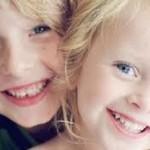 Nguyên nhân và cách khắc phục răng sữa trẻ em bị vàng