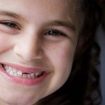 Những thắc mắc thường gặp về thay răng sữa ở trẻ em