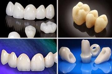 """Kiến thức nha khoa: """"Răng sứ không kim loại là gì?"""""""