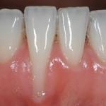 Hiểm họa khôn lường của việc tẩy trắng răng không đúng cách