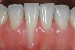 Hiểm họa tẩy trăng răng không đúng cách