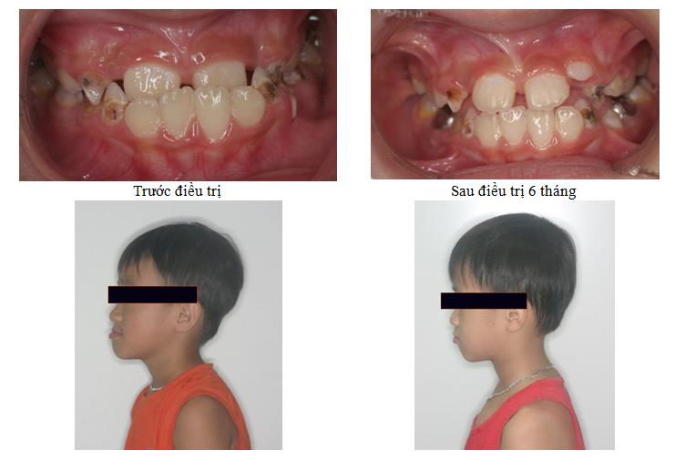 Bệnh nhân 8 tuổi, khớp cắn ngược, điều trị can thiệp sớm, và kết quả sau 6 tháng điều trị