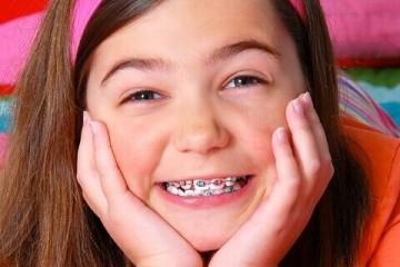 5 điều cha mẹ cần biết trước khi quyết định niềng răng cho trẻ em