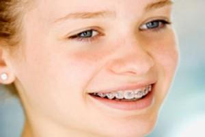 Độ tuổi nên bắt đầu điều trị chỉnh nha