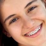 Thời gian niềng răng mất bao lâu thì hoàn tất?