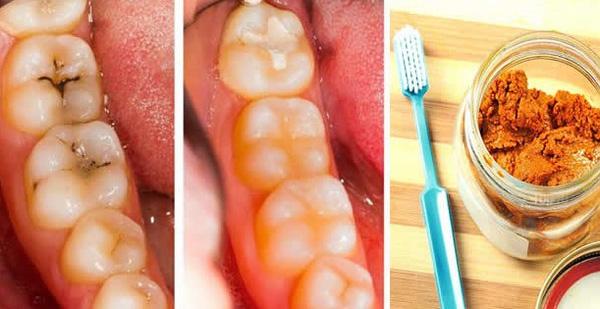 Vấn đề về răng gây sâu răng