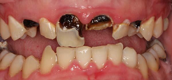 Nhức răng sưng má do sâu răng