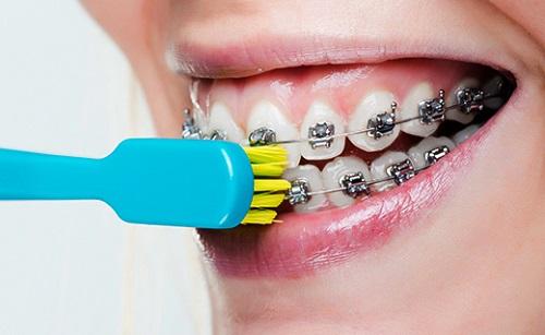 Kết quả hình ảnh cho Vệ sinh khi niềng răng như thế nào?